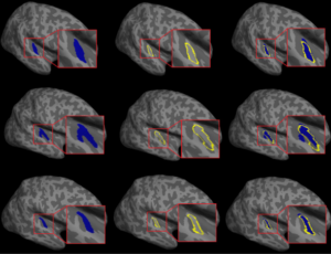 Heschl's Gyrus segmentation tool from our lab